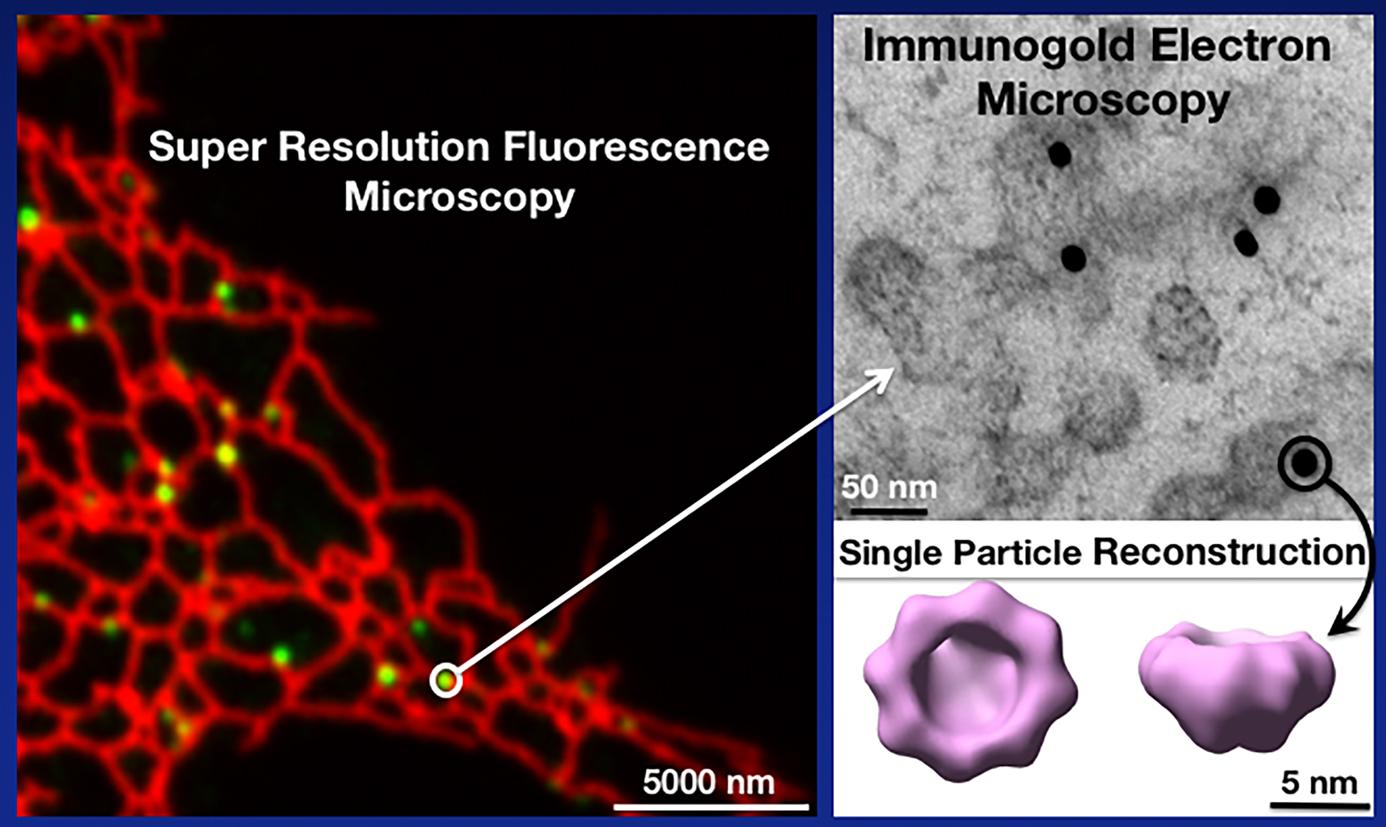 Supper resolution fluorecence microscopy to electron microscopy image
